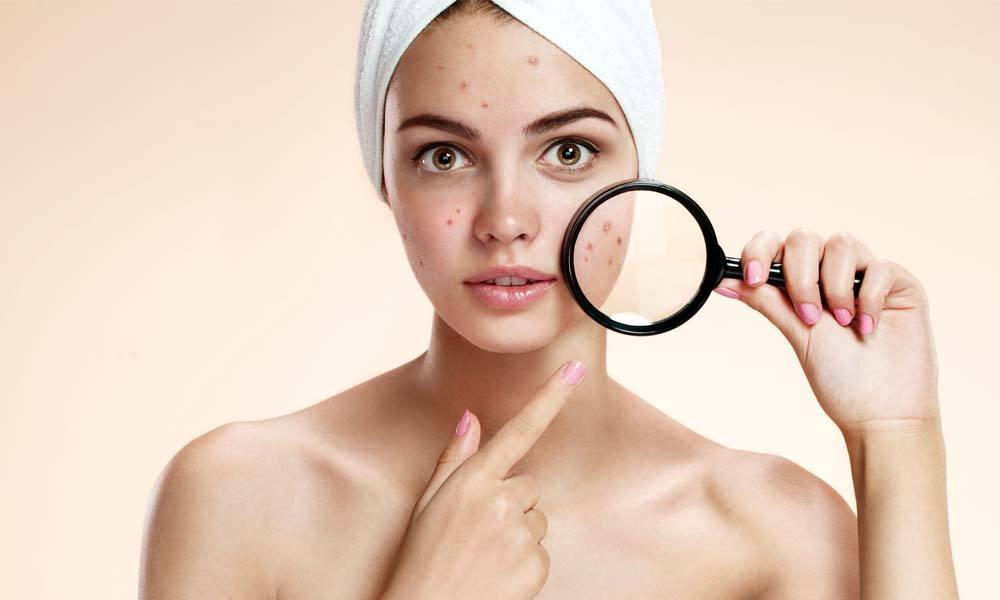 Ingrijirea pielii acneice