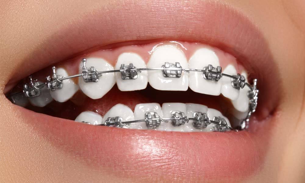 Ingrijirea dintilor cand porti aparat dentar